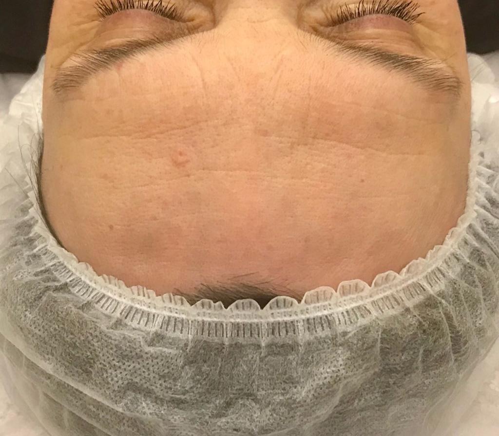Спустя 30 дней после процедуры лазерного омоложения