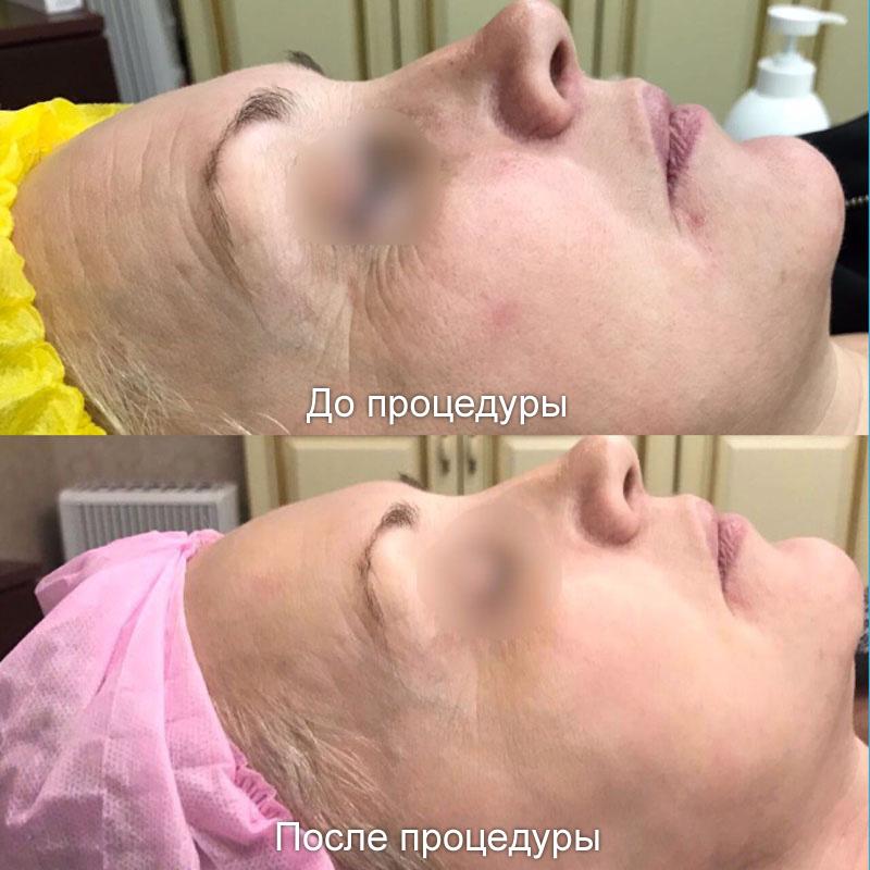лазерная эпиляция какие волосы удаляет